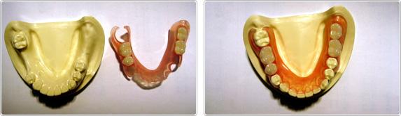 新素材を使用した弾性義歯をノンクラスプデンチャー(保険適応外)